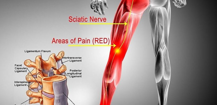 Why It's Simpler To Fail With The Sciatic Nerve Than You May Suppose